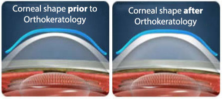 Ortho-K pre and post